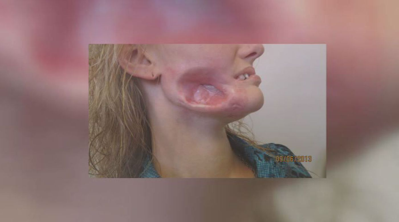 Surgeon to reconstruct woman's disfigured face after jaw