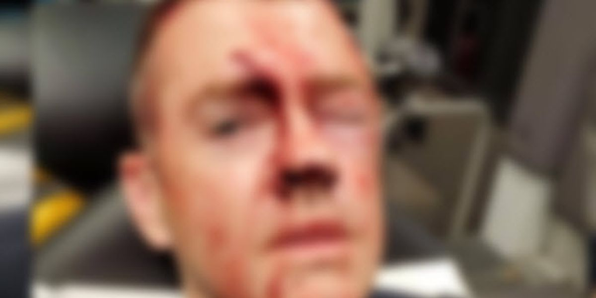 Police union president posts photo of bloodied officer after YMCA attack: Deadly force 'would have been justified'
