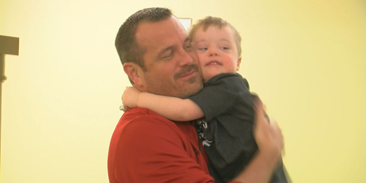 UofL coach sprouts kindness on World Down Syndrome Day