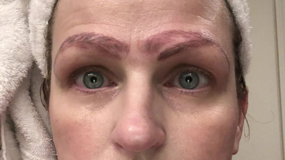 Woman suffers eyebrow disaster in microblading gone wrong