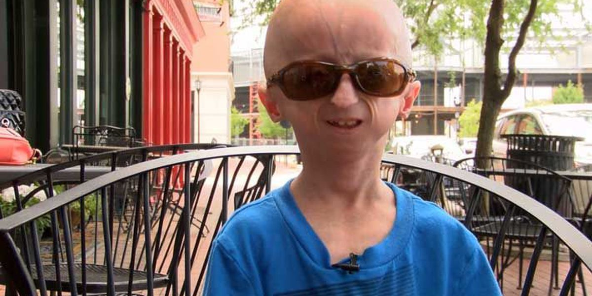 KY boy with Progeria will kick off 5K for research