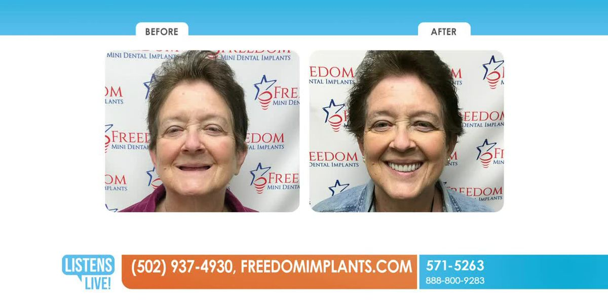 WAVE 3 Listens Live! Freedom Mini Dental Implants Part 1 May 15, 2019
