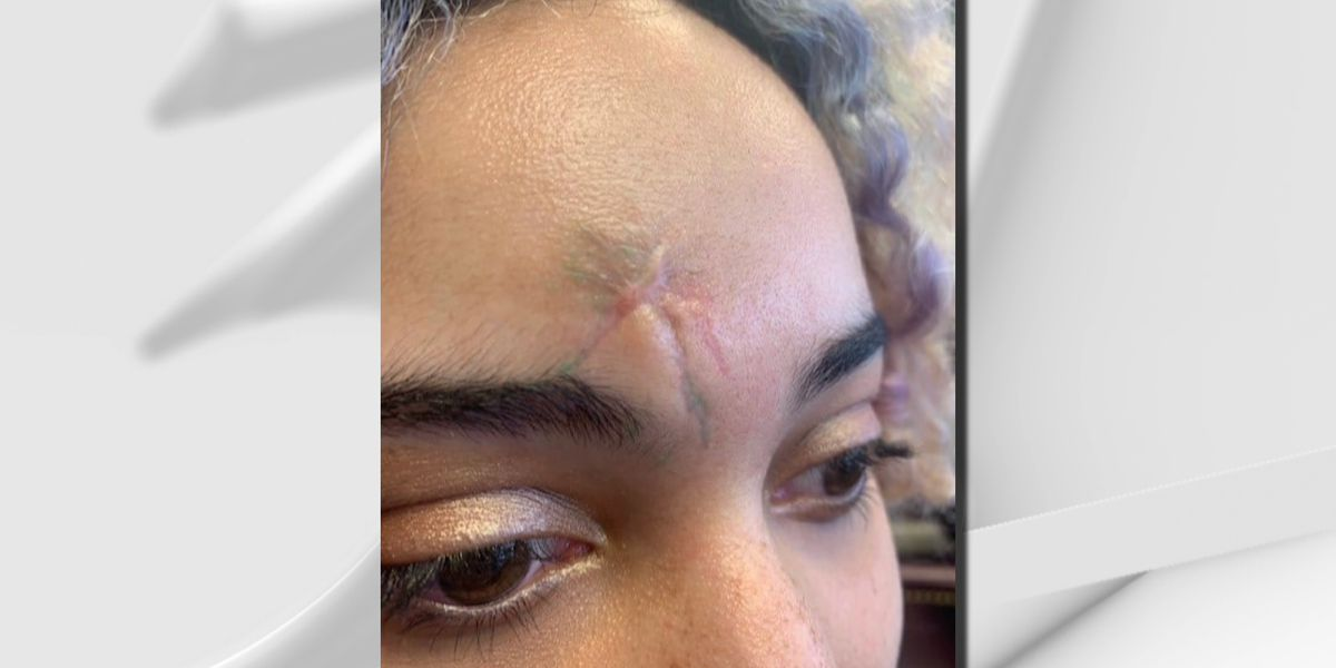 Protester sues LMPD after rubber bullet injury, says she's 'a survivor'