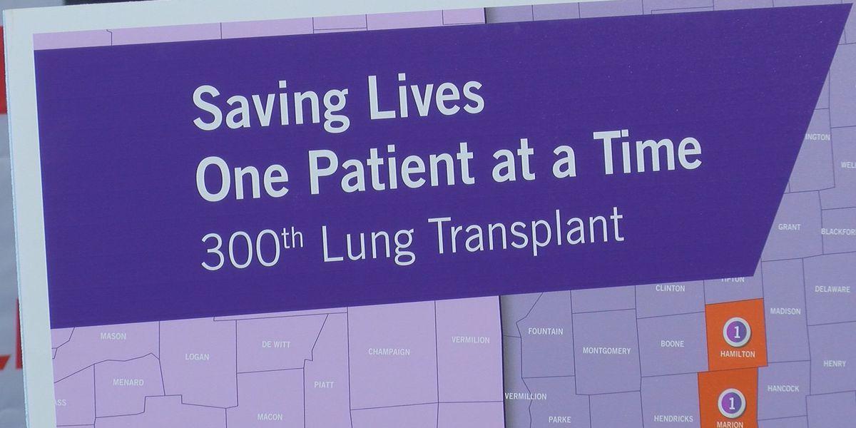 Jewish Hospital celebrates 300th lung transplant