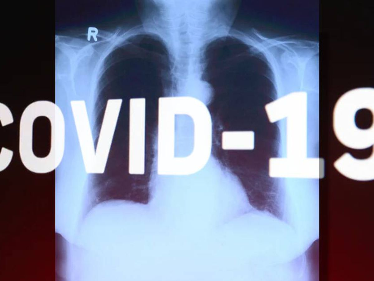 Some COVID-19 survivors dealing with lung damage